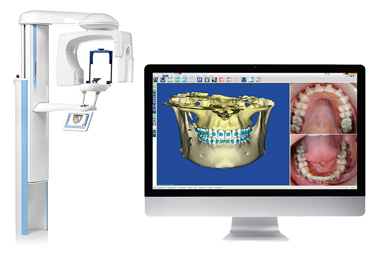 Tac 3d dental - Clínica Acevedo