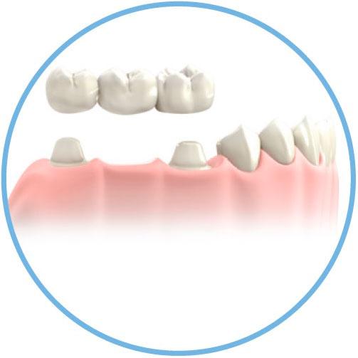 prótesis dental - Clínica Acevedo