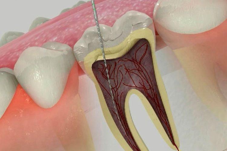 Endodoncia con láser   Clínica Dental Acevedo