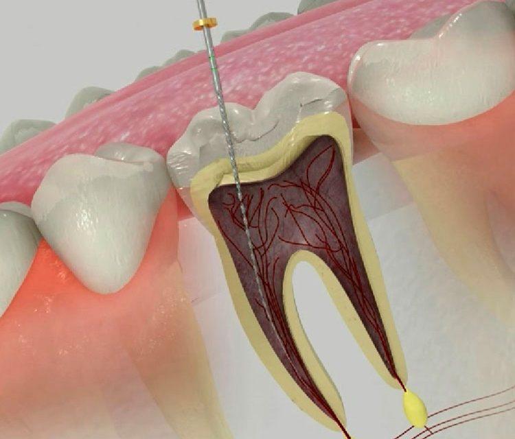 Endodoncia con láser | Clínica Dental Acevedo