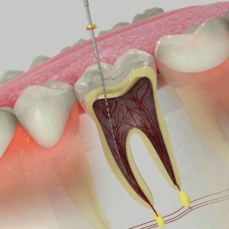 Endodoncia con láser -Clínica Acevedo