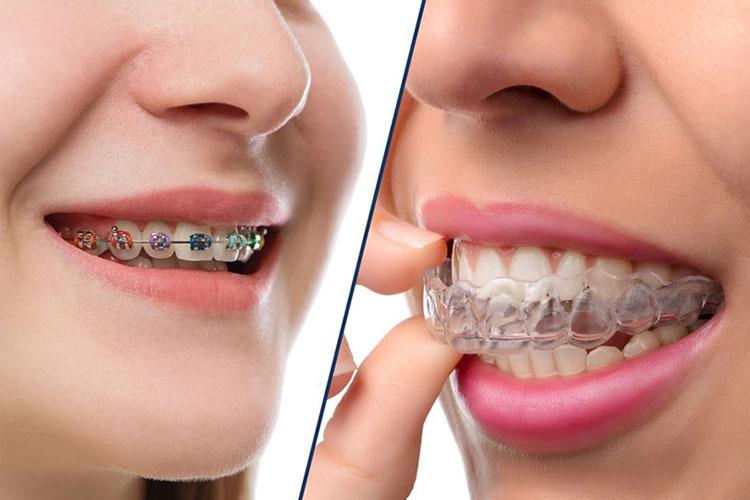 Tratamiento ortodoncia - Clínica Acevedo