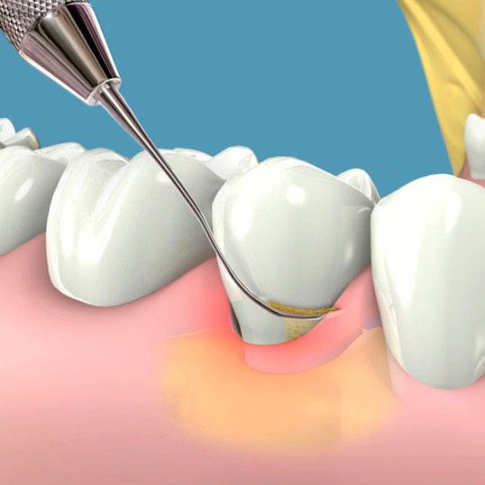 Periodoncia tratamiento de encias | Clínica Dental Acevedo