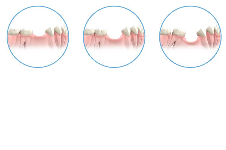 Clínica prótesis dental - Clínica Acevedo