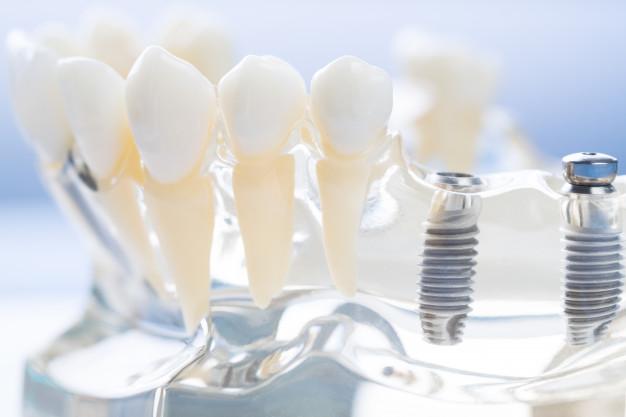 modelo implantee dentales