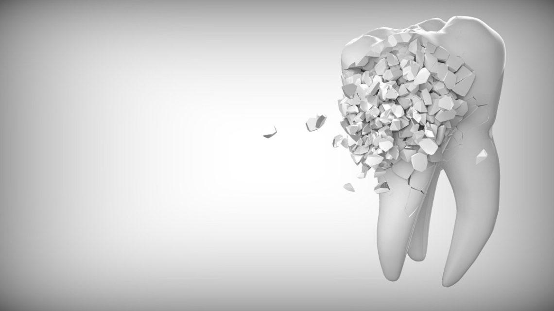 pieza dental que se rompe
